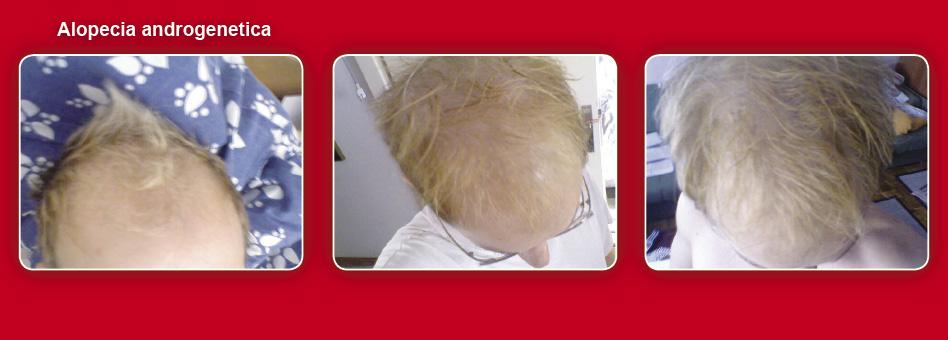 Wie das Leinöl für das Haar hilft